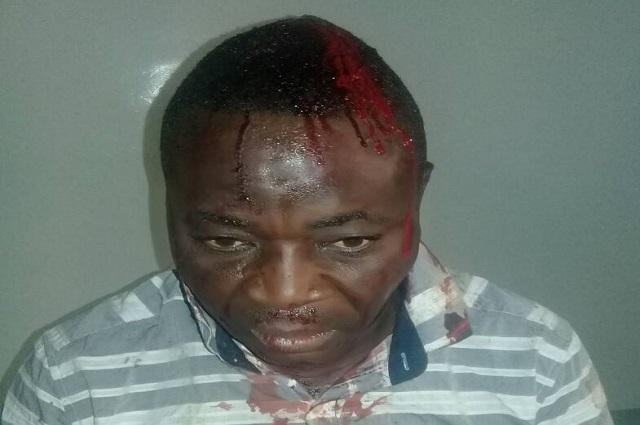 Lubumbashi : le vice-président du PND parti proche de Moïse Katumbi agressé cette nuit