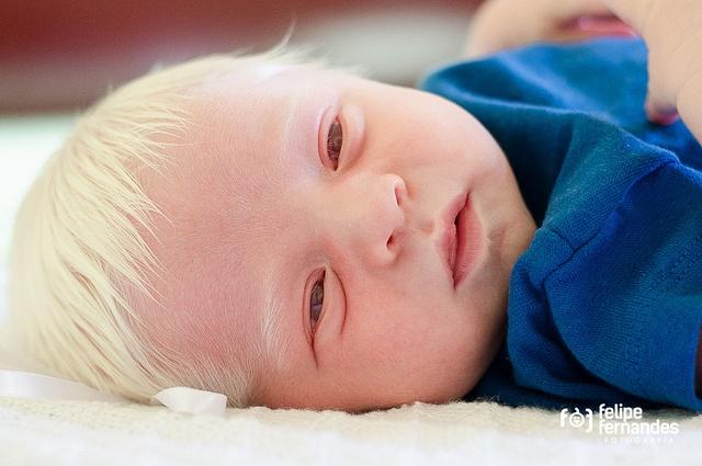 Lubumbashi: 13 albinos décédés de cancer de la peau en six mois