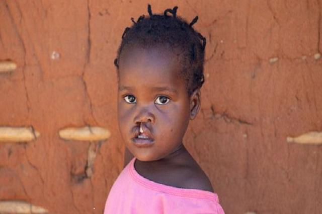 Lubumbashi : une cinquantaine de malades soignés gratuitement des fentes labiales et palatines